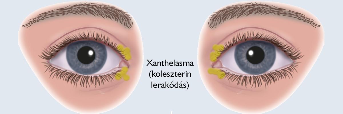 vélemények a szemhéj papillóma kezelésére)