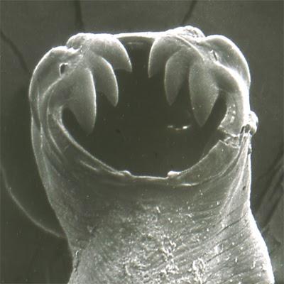 a pinwormokhoz)