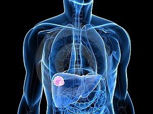 vastagbél méregtelenítő kezelés lenmaggal 6. osztályú baktériumok