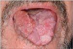 papillomavírus szájnyelv