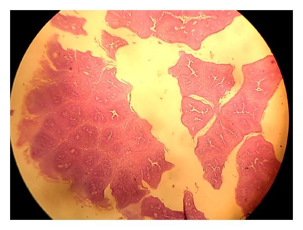 uvula papilloma