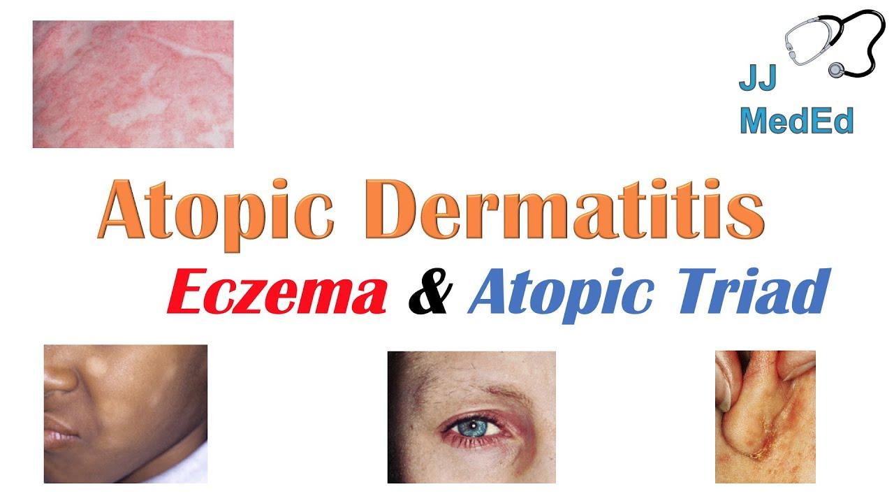 dermatitis 6 hónap