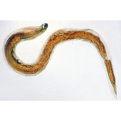 horogféreg parazitológia)
