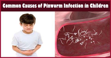 pinworms tenni)