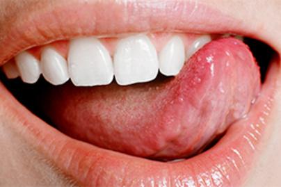 10+1 masszív tévhit a HPV-ről – és cáfolatuk!
