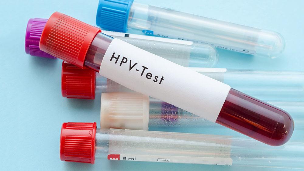 Human papillomavirus tunetei - gajaliget.hu