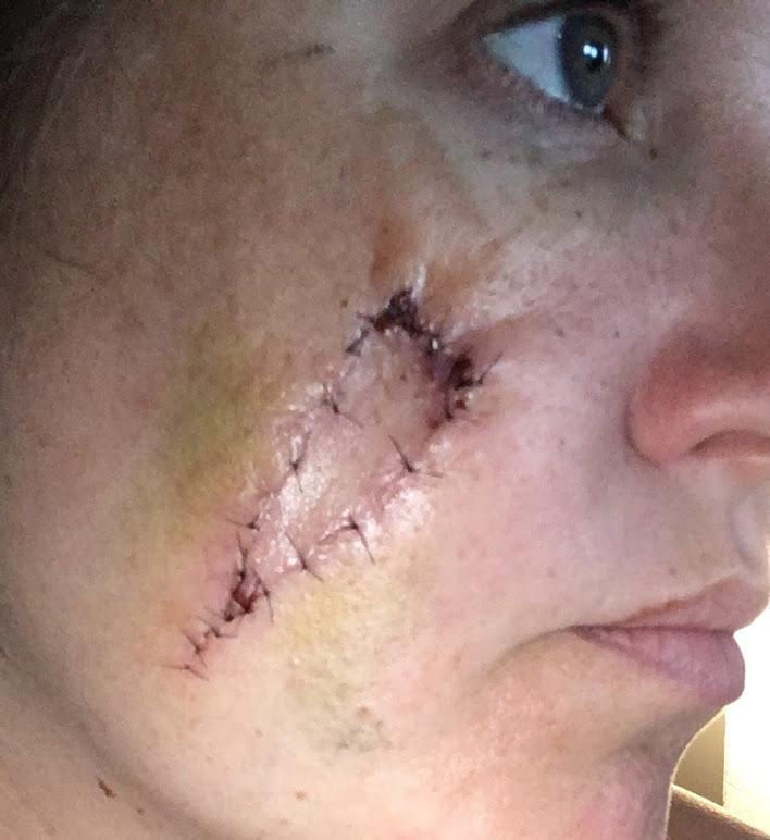bőrrák az arcán milyen drog pusztítja el a parazitákat a szervezetben