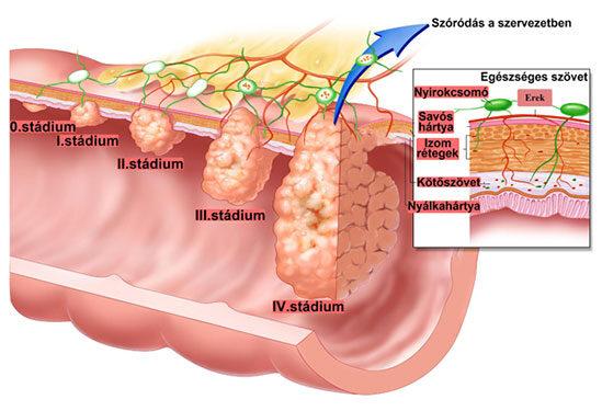 vastagbélrák nő tünetei