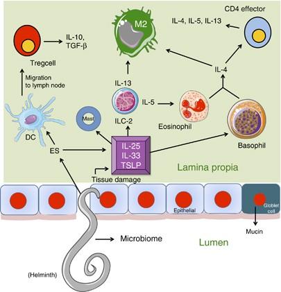 helminthiasis és szklerózis gyomorrák története