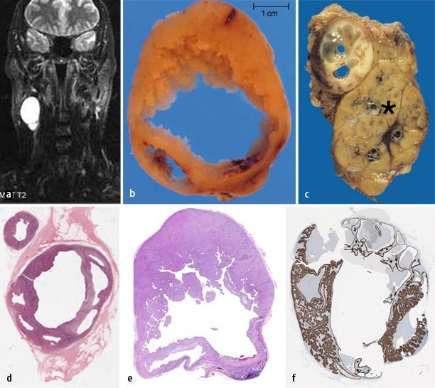 hpv p16 oropharyngealis rák