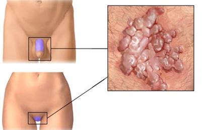 emberi papillomavírus fertőzés vs genitális szemölcsök)