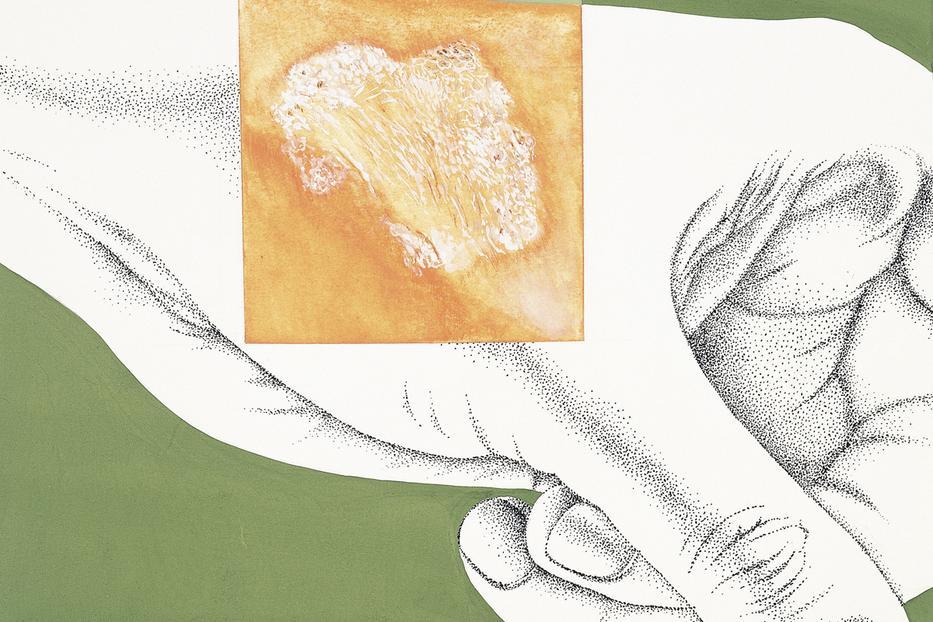 tojásféreg-gyógymódok könnyű paraziták