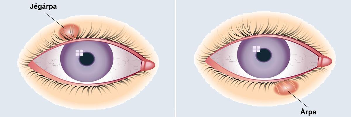 szemhéjak kezelése a szemhéjon)