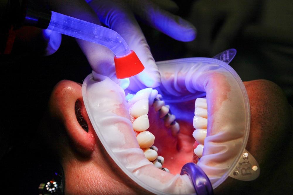 diagnosztikus szájüregi rák)