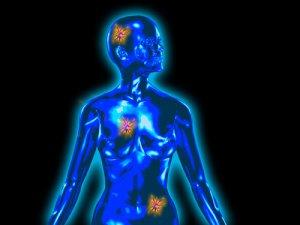 emlőrák tünetei férfiaknál Meggyógyítom a férgeket