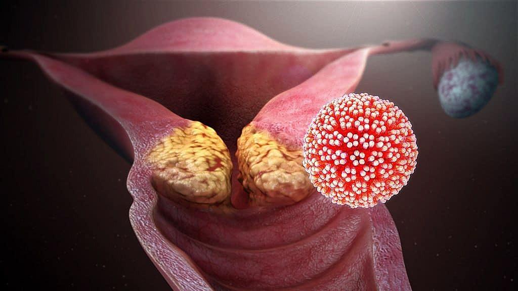 humán papillomavírus fertőzés pozitív