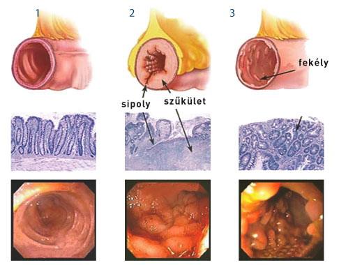 a crohn-féle dysbiosis betegség vastagbél méregtelenítő kezelés lenmaggal