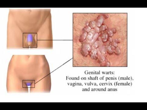 a condyloma cauterizálása elektrokoagulációval