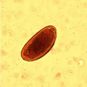 fekete magok a széklet parazitákban féreg szövődmények