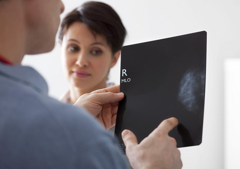 Karcinogenezis
