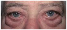 a hpv szemölcs fáj