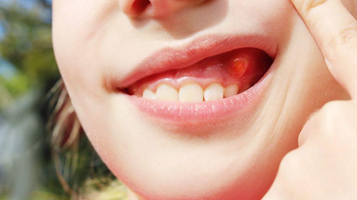 a fogbetegségek tünetei