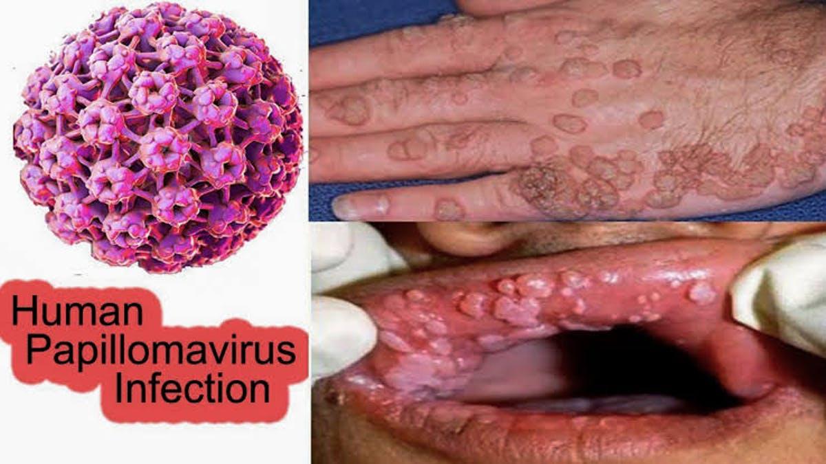humán papilloma vírus hpv hatalmas szemölcsök kezelése