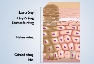 nyaki biopszia szemölcsökkel