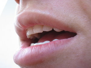 papilloma ajkak száj)