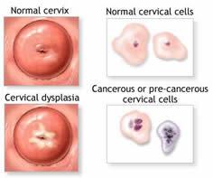a genitális szemölcsök diatermokoagulációja