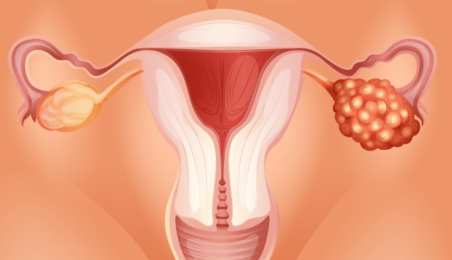 Nőgyógyászati onkológia tanácsadás - Mutáció.hu