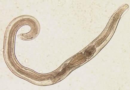 enterobius vermicularis reservorio)