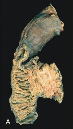 hasnyálmirigyrák diagnózis)