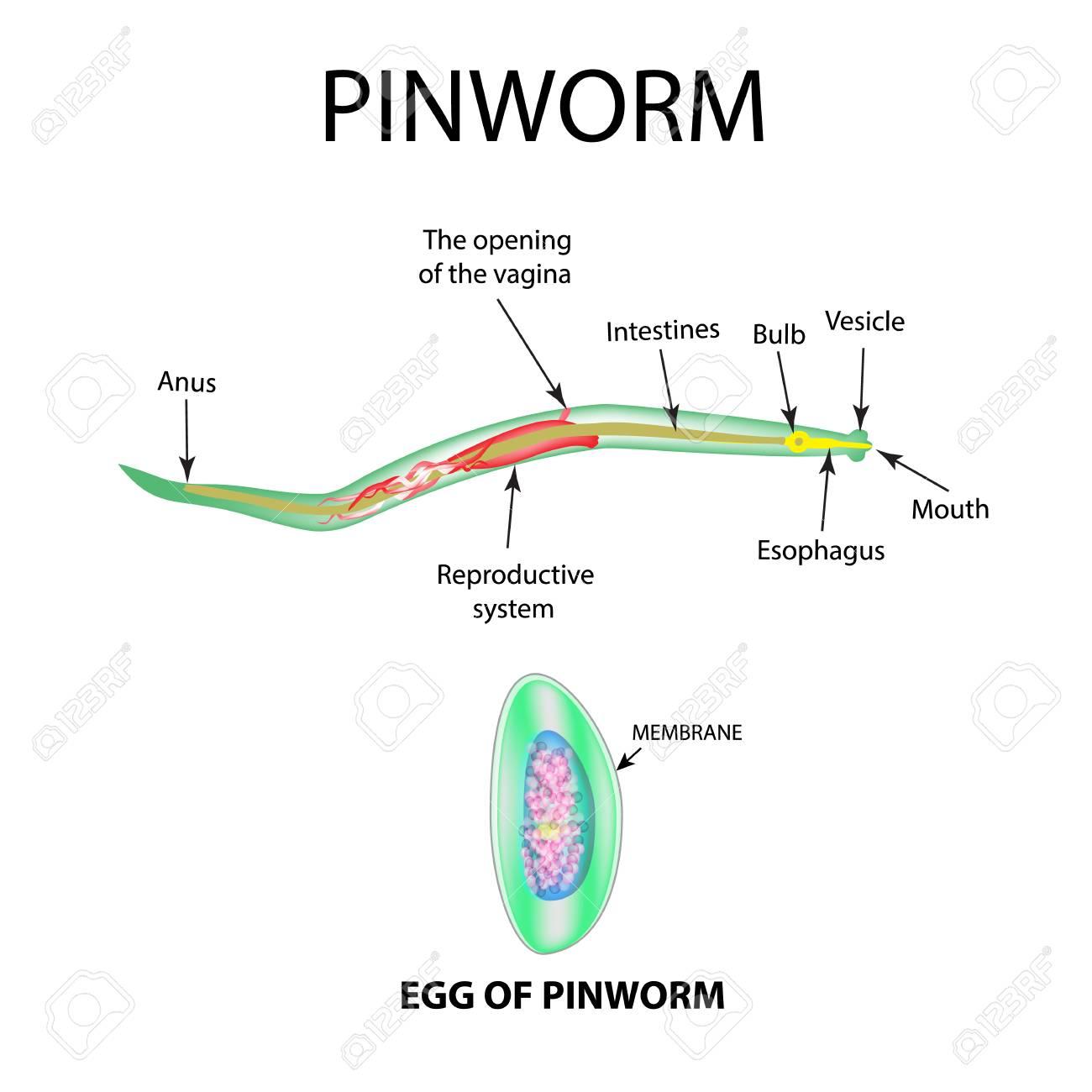 pinworm diagram)