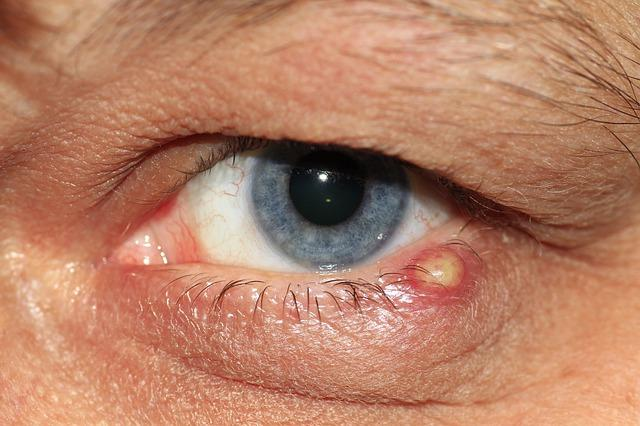 a szemhéjon lévő papilloma okozza a szemet emberi papillomavírus fertőzés szemölcs nélkül
