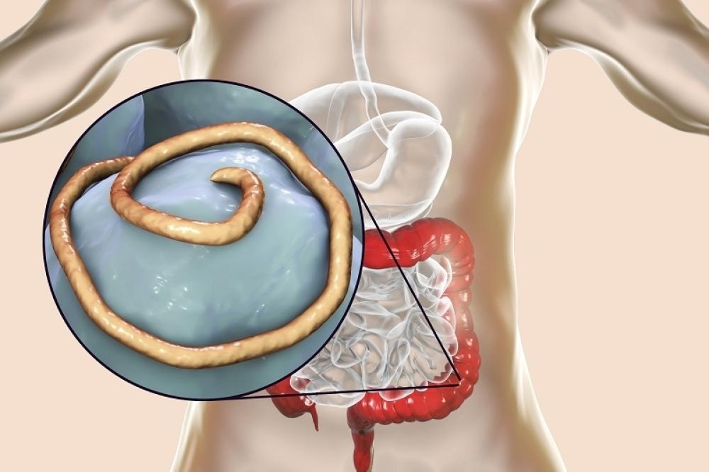 paraziták u telu i kako ih izbaciti)