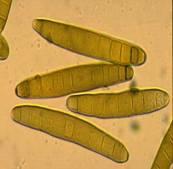 helminthosporium maydis)