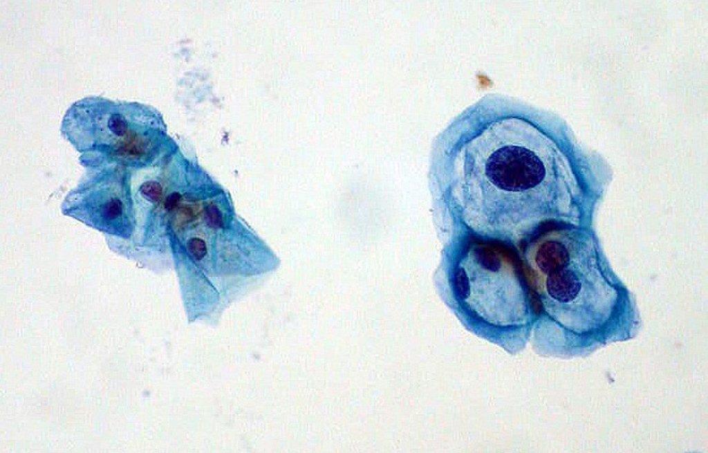 Papilloma vírus késleltetési ideje - Érzel parazitákat benned?