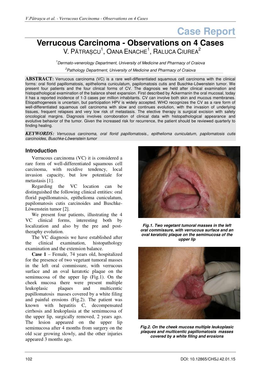 papillomatosis cutis benigna)