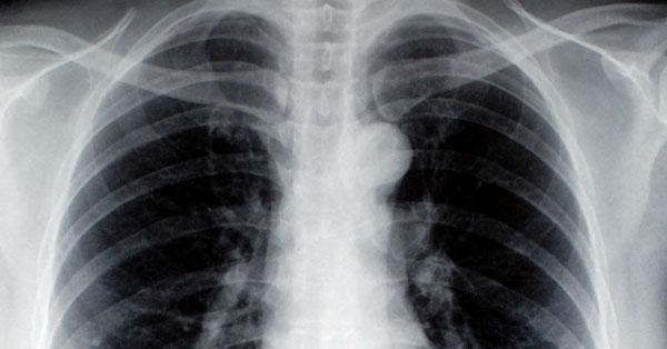 férgek a tüdőben a gyermekek tünetei és kezelése)