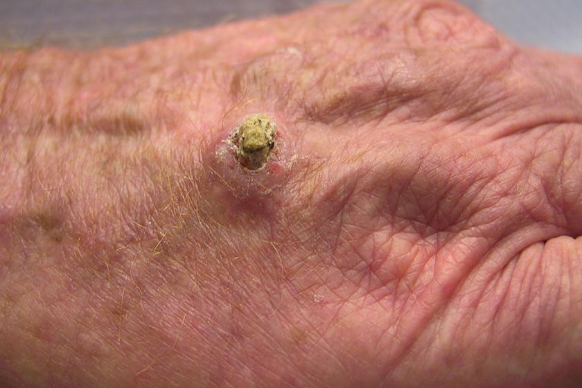 rákos ganglionok hodgkin