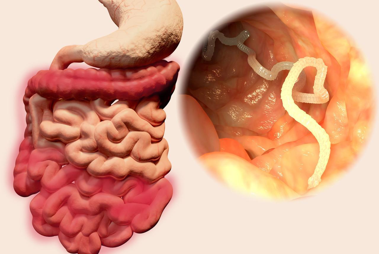 kako otkriti paraziták és crijevima