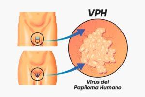 papilloma juvenil adalah)