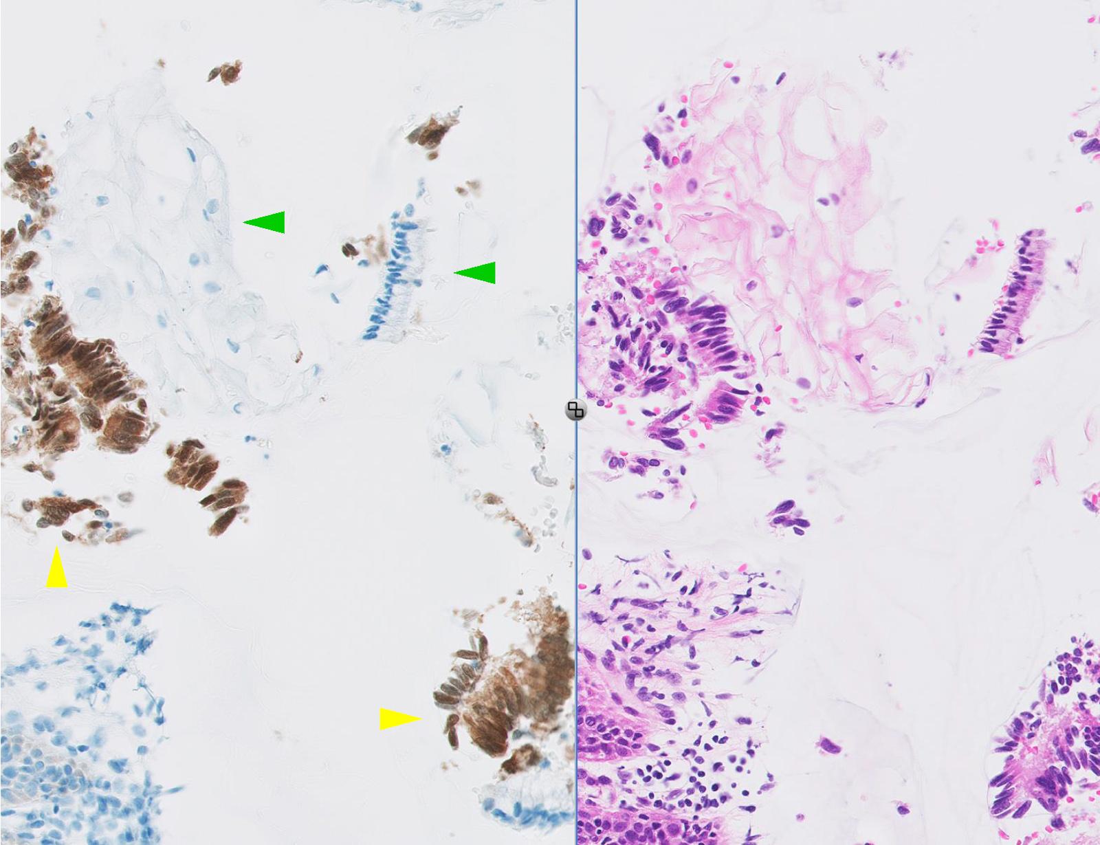 pikkelyes papilloma nyelőcső p16 férgek a gyermekkori kezelés során