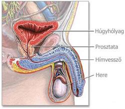 prosztatarák kemoterápia rákos ganglionok hodgkin