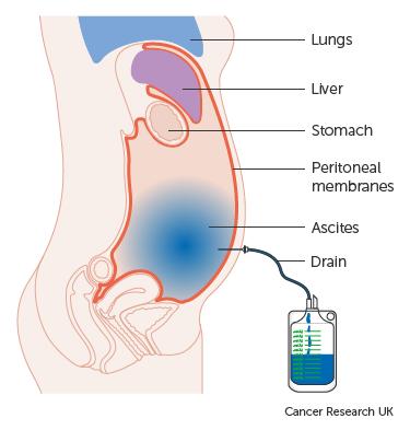 peritoneális rák férfiaknál