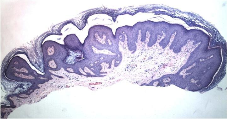 pikkelyes papilloma és condyloma acuminatum)
