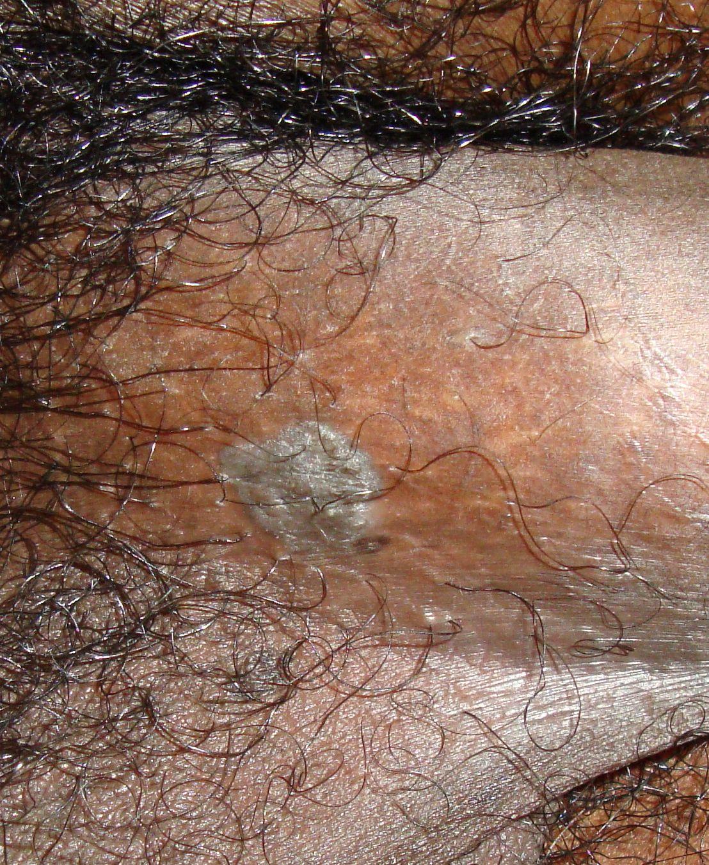 Condyloma acuminatum - Dr Zatik nőgyógyász Debrecen