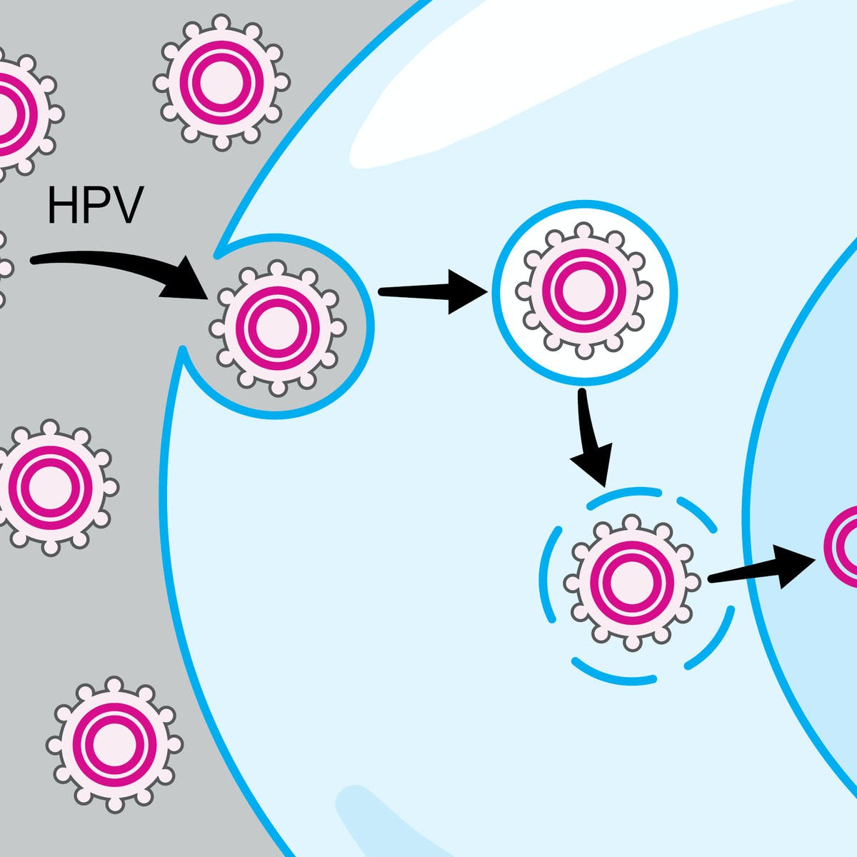 A HPV-pozitív száj-garatüregi rákok sugárérzékenysége