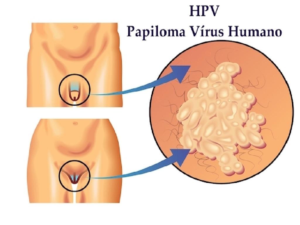 papilloma vírus yaitu